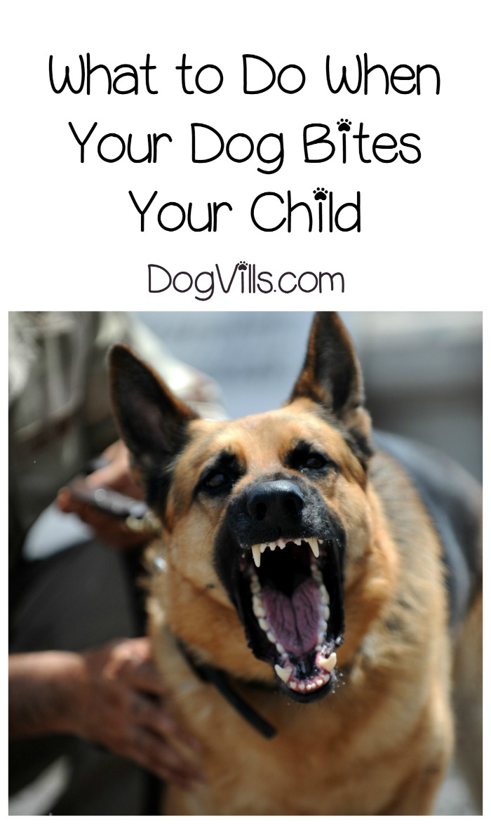 Dog Attack – What to Do When Your Dog Bites Your Child